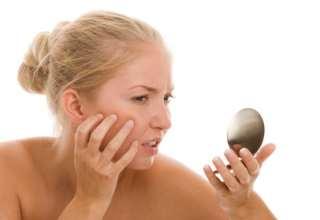 Eine junge Frau mit Pickeln im Gesicht