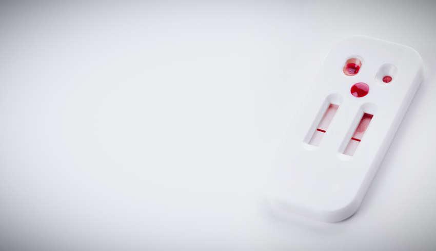 Der HIV-Test für zu Hause: Hilfe für Patienten und Ärzte