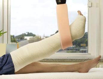 Gebrochenes Bein im Krankenhaus